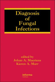 Diagnosis of Fungal Infections - Johan Maertens